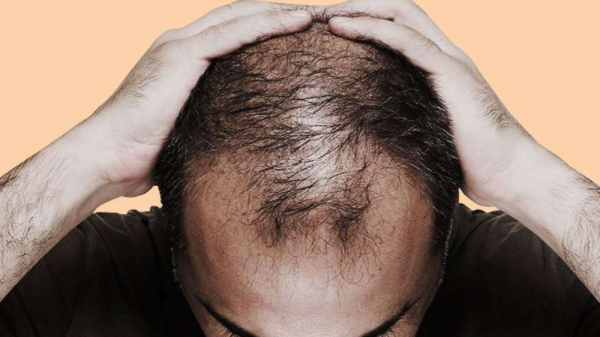 Reason why you are bald or have grey hairs