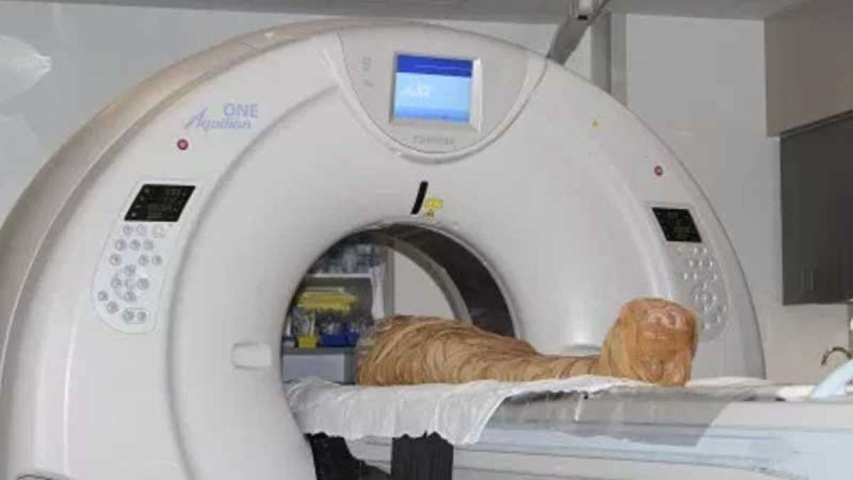 2000 year old Cazenovia mummy 'Hen' undergoes CT scan at Crouse Hospital