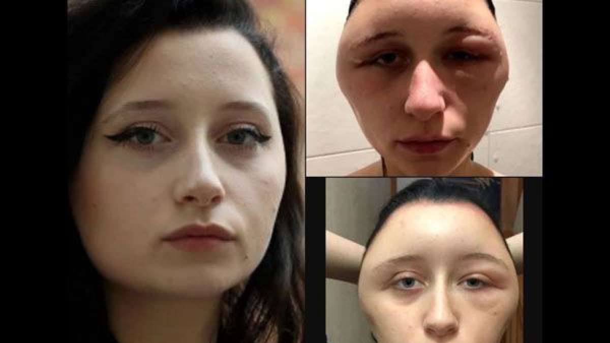 19-year-old woman face expanded and started to look like a light bulb after applying hair dye