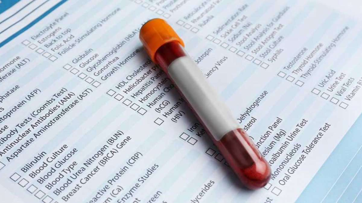 7 important preventive tests that you must undergo